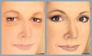 Blepharoplasty - Diagram